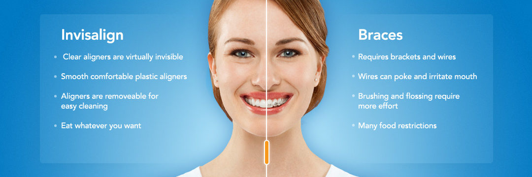 14 Things You Need To Know Before Starting Invisalign