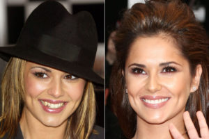 Cheryl Cole Veneers Transformation