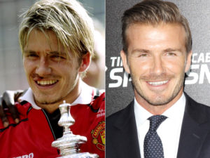 David Beckham Veneers Transformation