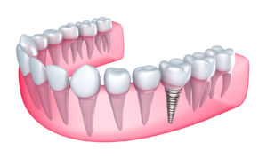 Dental Implants Illustration