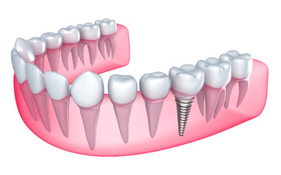 Here's Everything You Need To Know About Dental Implants