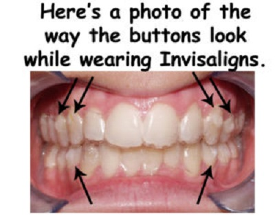 Orthodontist in Aloha OR