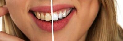 Teeth Whitening in Aloha OR